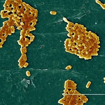 Escherichia coli About 100 pathogenic serotypes that may cause disease